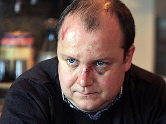 В Екатеринбурге депутата избили за опасный маневр на дороге