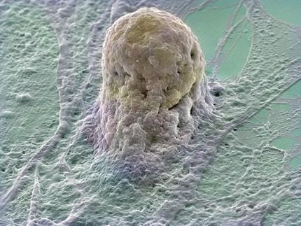 Стволовые клетки в борьбе с раком