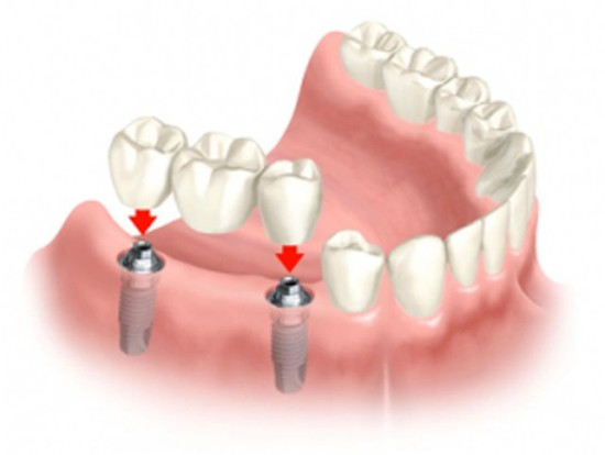 Протезирование зубов – новый этап