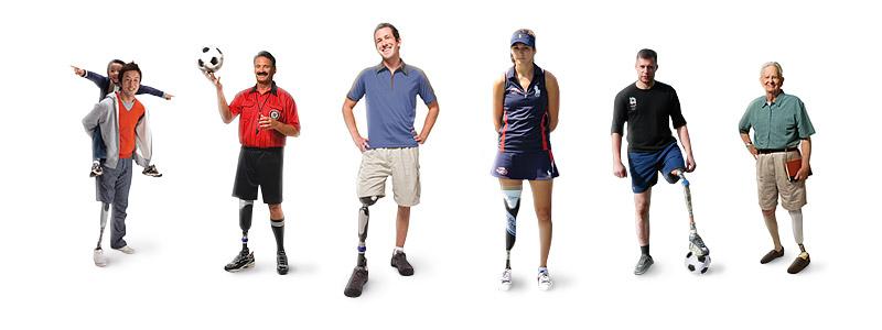 Инновационный протез ноги