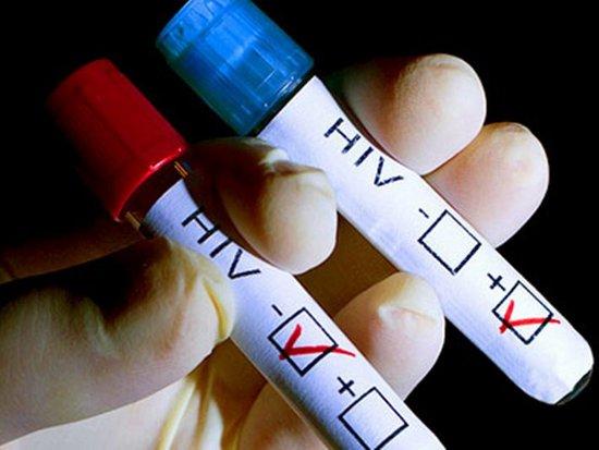 В этом году ВИЧ обнаружили у более чем двухсот смолян