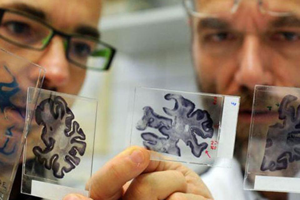 Болезнь Альцгеймера — что это?