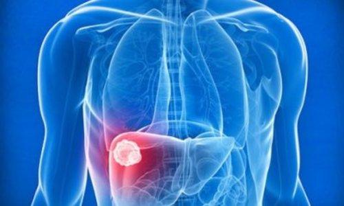 Что такое гепатит?