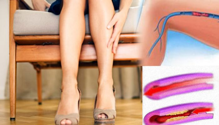 Тромбофилия: факторы риска и анализы