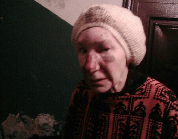 В Смоленске прекращены поиски родственников избитой старушки, потерявшей память