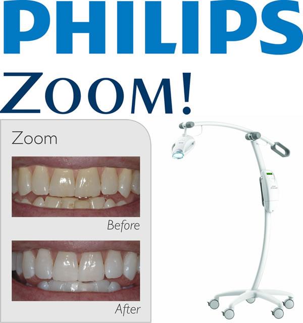 Предложение для стоматологов: как обеспечить безлимитное использование Philips Zoom