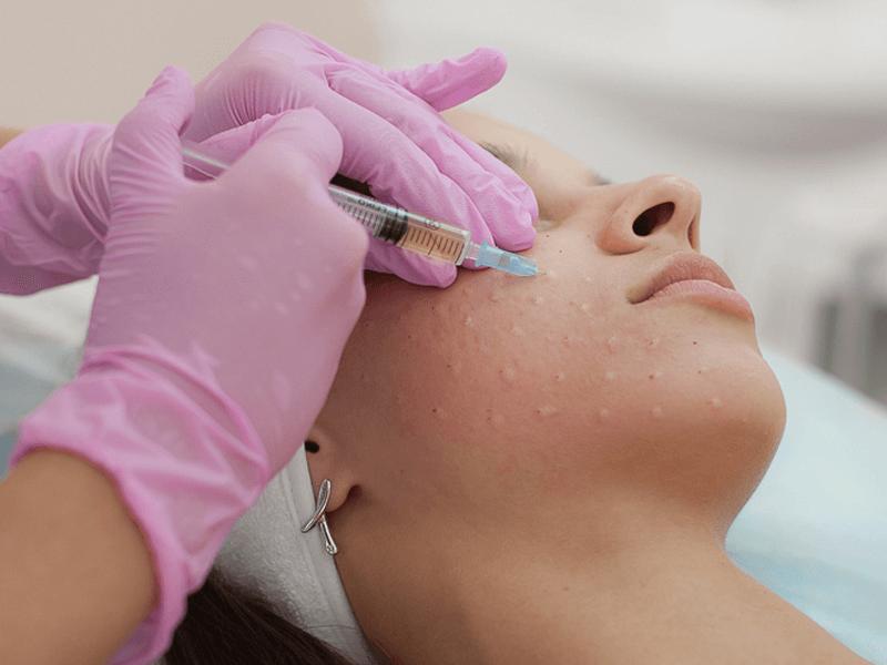 Мезотерапия — инъекция красоты