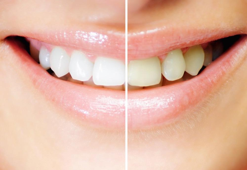 Как подготовить зубы к отбеливанию?