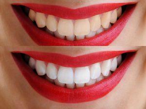 Белоснежная улыбка: нюансы отбеливания