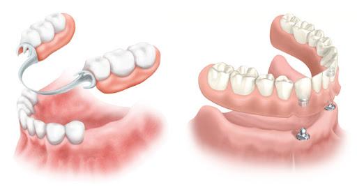 Протезирование зубов: особенности и виды. Что пациентам нужно знать про адгезивное протезирование?