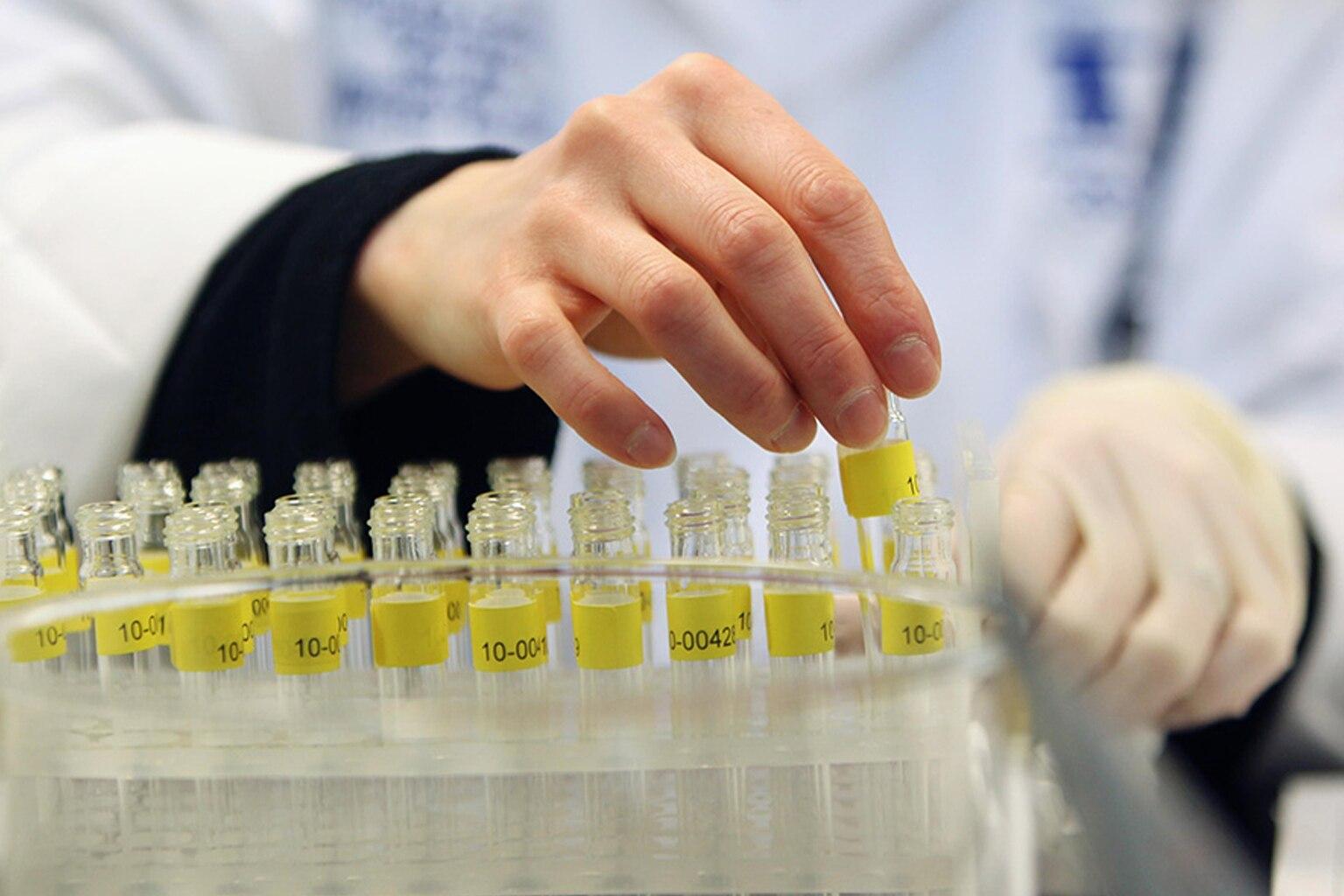 Антидопинговое тестирование должны пройти 422 кандидата в сборную России на Паралимпиаду