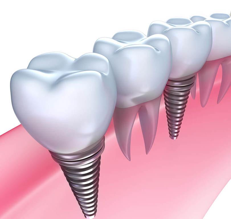 Почему имплантация зубов лучше: полезные советы